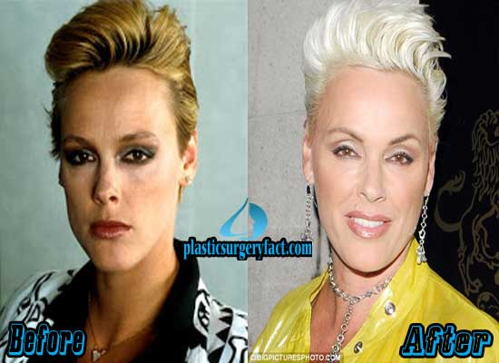 Brigitte Nielsen Plastic Surgery Before and After
