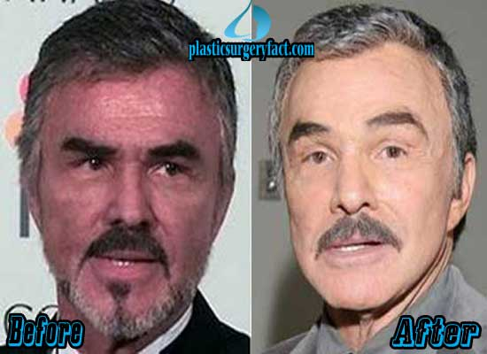Burt Reynolds Facelift Before and After