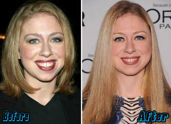 Chelsea Clinton Before and After Plastic Surgery