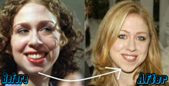 Chelsea Clinton Chin Augmentation Before and After