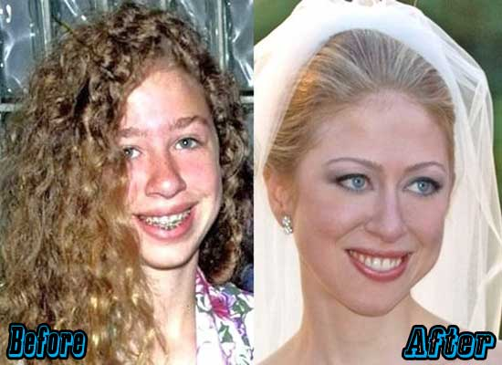 Chelsea Clinton Plastic Surgery Before and After