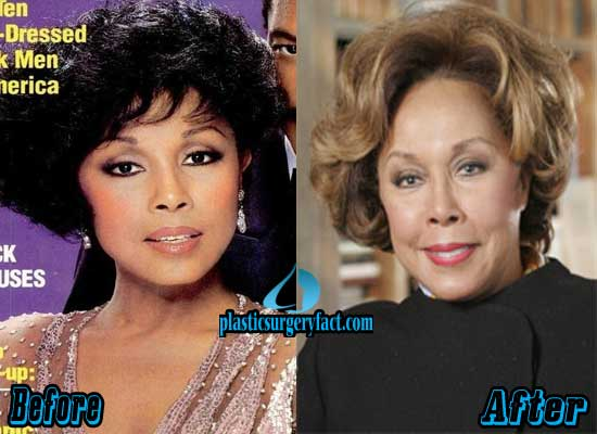 Diahann Carroll Before and After Plastic Surgery