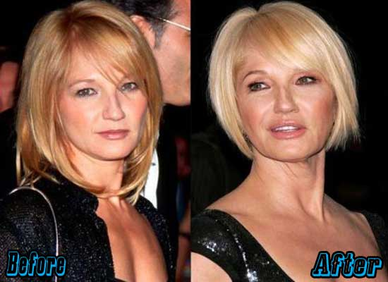 Ellen Barkin Before and After Plastic Surgery