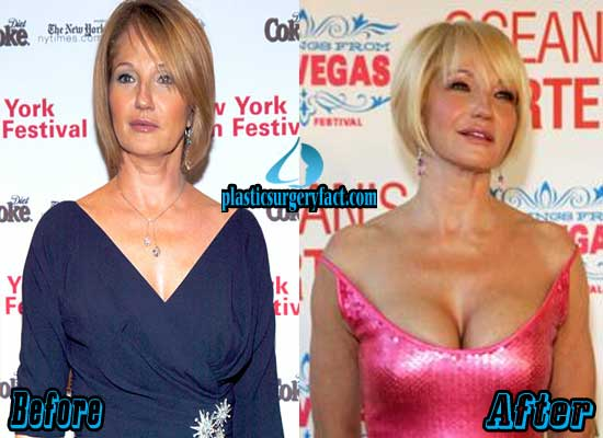 Ellen Barkin Breast Augmentation Before and After