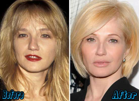 Ellen Barkin Plastic Surgery Before and After