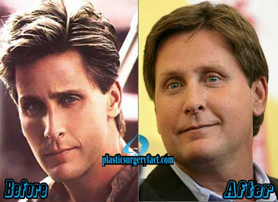 Emilio Estevez Before and After Plastic Surgery