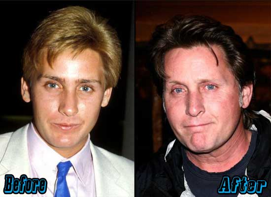 Emilio Estevez Plastic Surgery Before and After