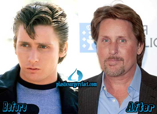 Emilio Estevez Plastic Surgery Face