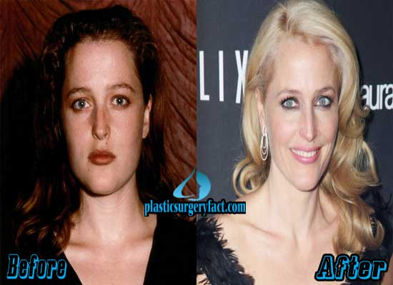 Gillian Anderson Before and After Plastic Surgery