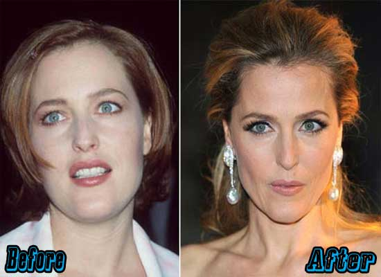 Gillian Anderson Nose Job Before and After
