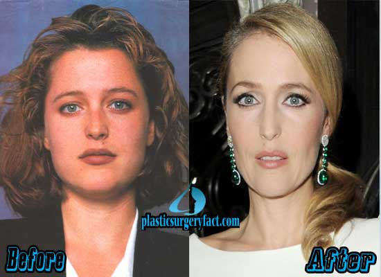 Gillian Anderson Plastic Surgery Before and After