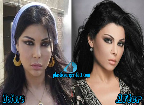 Haifa Wehbe Nose Job Before and After