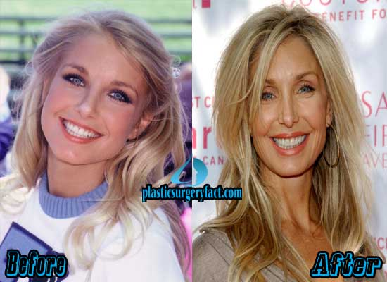 Heather Thomas Before and After Photos