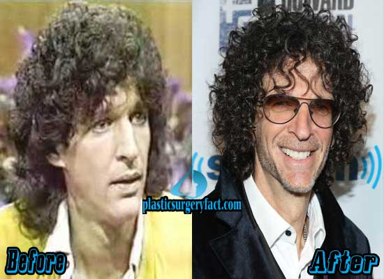 Howard Stern Before and After Plastic Surgery