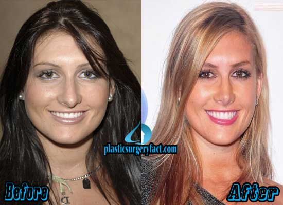 Jen Bunney Nose Job Before and After
