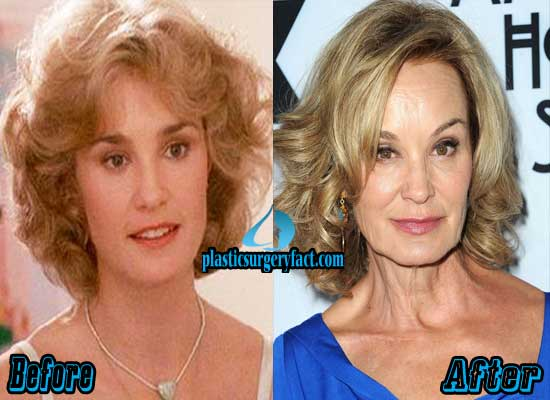 Jessica Lange Before and After Photos