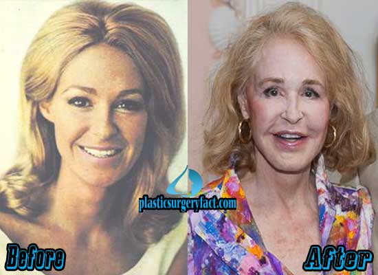 Joan Kennedy Before and After Plastic Surgery