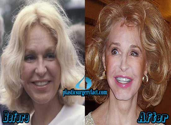 Joan Kennedy Facelift Before and After