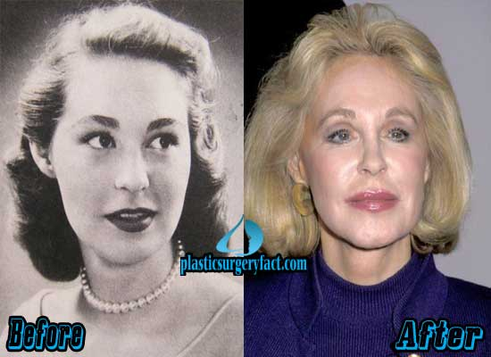 Joan Kennedy Plastic Surgery Before and After