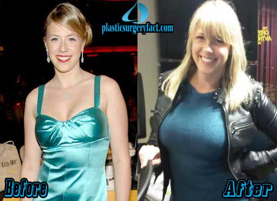 Jodie Sweetin Breast Implant Before and After