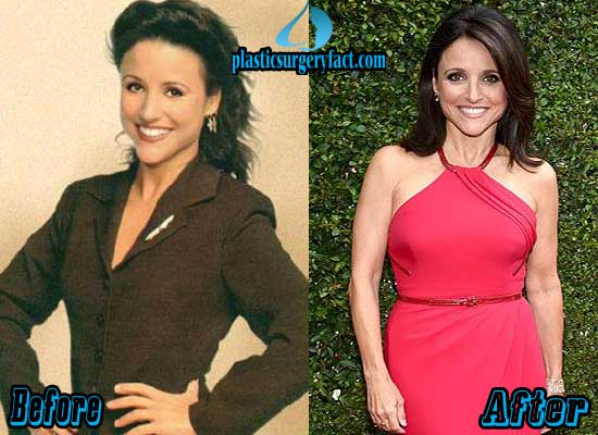 Julia Louis Dreyfus Breast Implant Before and After