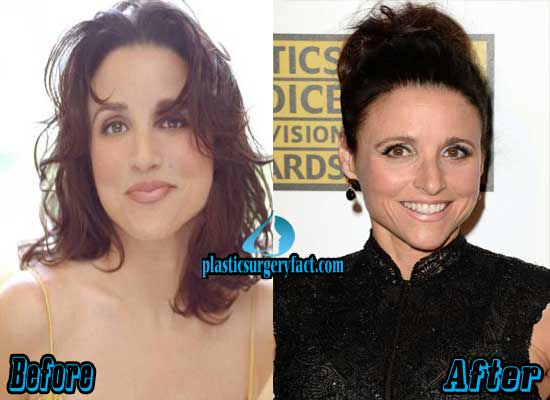 Julia Louis Dreyfus Nose Job before and After