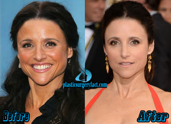 Julia Louis Dreyfus Plastic Surgery Before and After