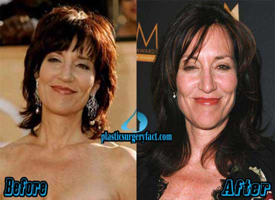 Katey Sagal Before and After Photos