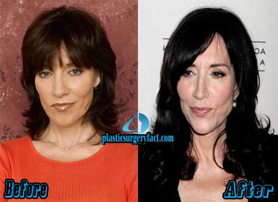 Katey Sagal Facelift Before and After