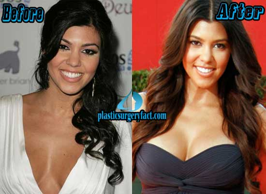 Kourtney Kardashian Breast Augmentation
