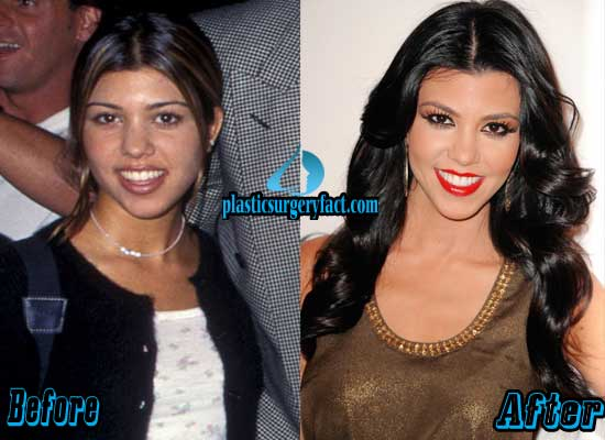 Kourtney Kardashian Nose Job Before and After