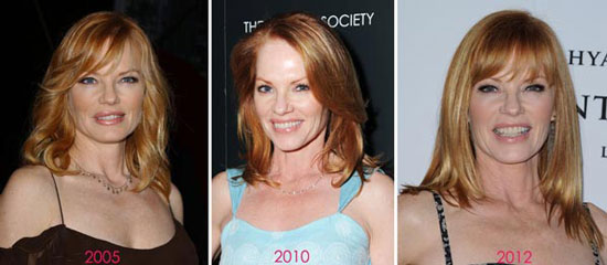 Marg Helgenberger Before and After Photos