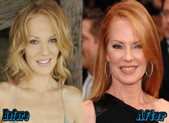 Marg Helgenberger Facelift Before and After
