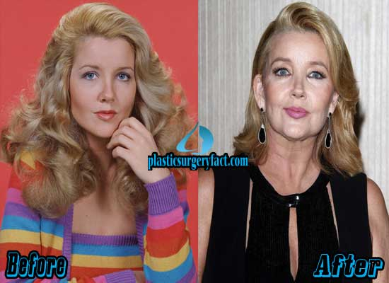 Melody Thomas Scott Before and After Plastic Surgery