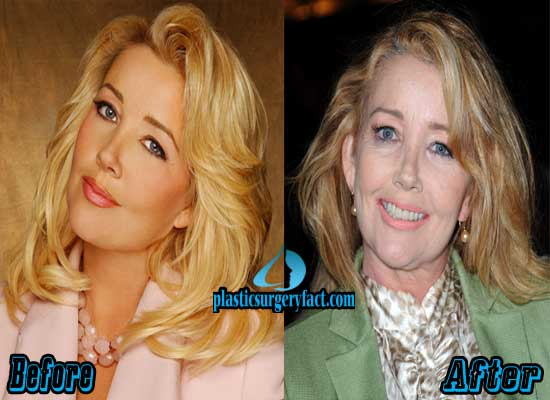 Melody Thomas Scott Facelift Before and After