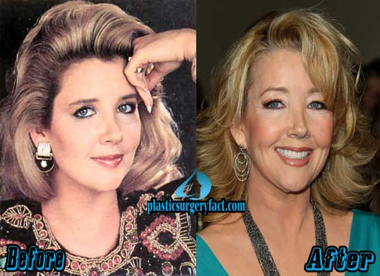 Melody Thomas Scott Plastic Surgery Before and After