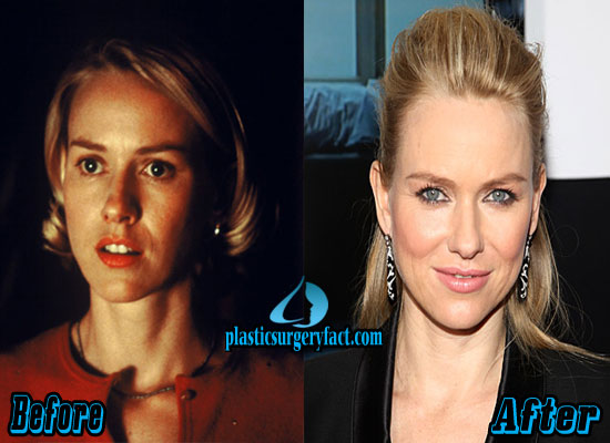 Naomi Watts Before and After Plastic Surgery