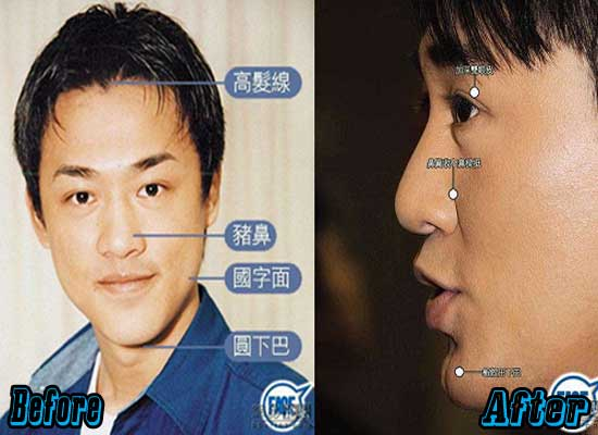 Raymond Lam Chin Implant Before and After