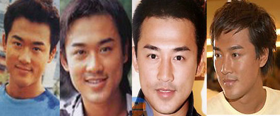 Raymond Lam Plastic Surgery Before and After