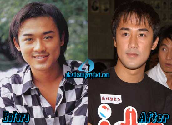 Raymond Lam Rhinoplasty Surgery Before and After