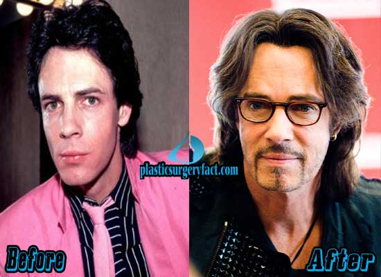 Rick Springfield Before and After Plastic Surgery