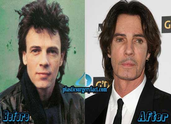 Rick Springfield Facelift Before and After