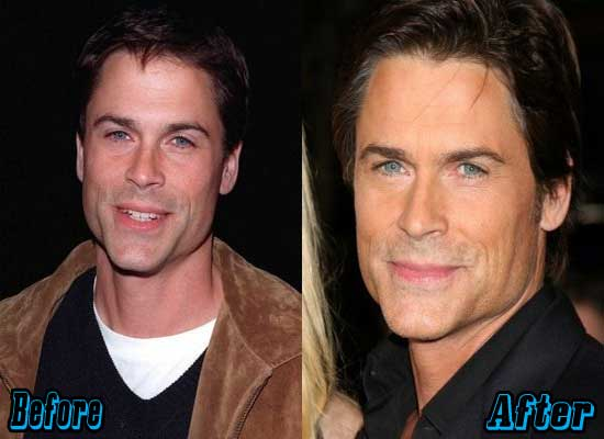 Rob Lowe Before and After Photos