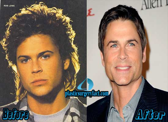 Rob Lowe Facelift Before and After