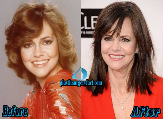 Sally Fields Before and After Photos
