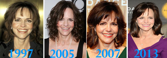 Sally Fields Before and After Plastic Surgery