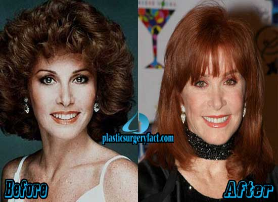 Stephanie Powers Before and After Photos
