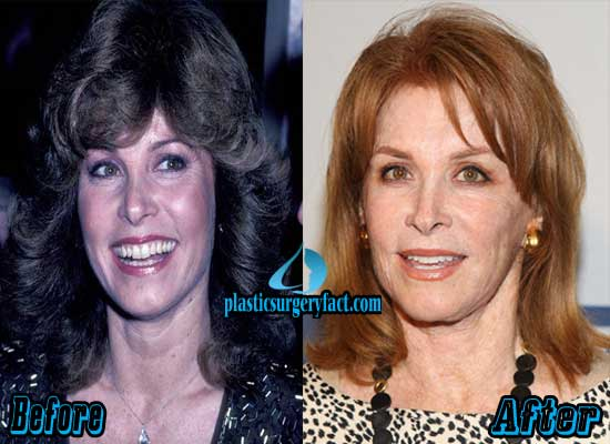 Stephanie Powers Before and After Plastic Surgery