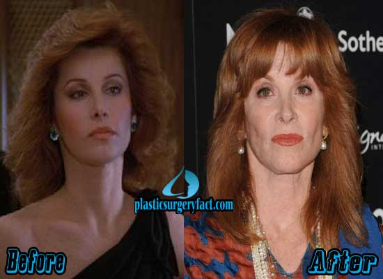 Stephanie Powers Facelift Before and After