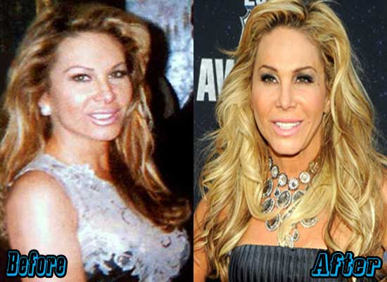 Adrienne Maloof Cosmetic Surgery Before and After